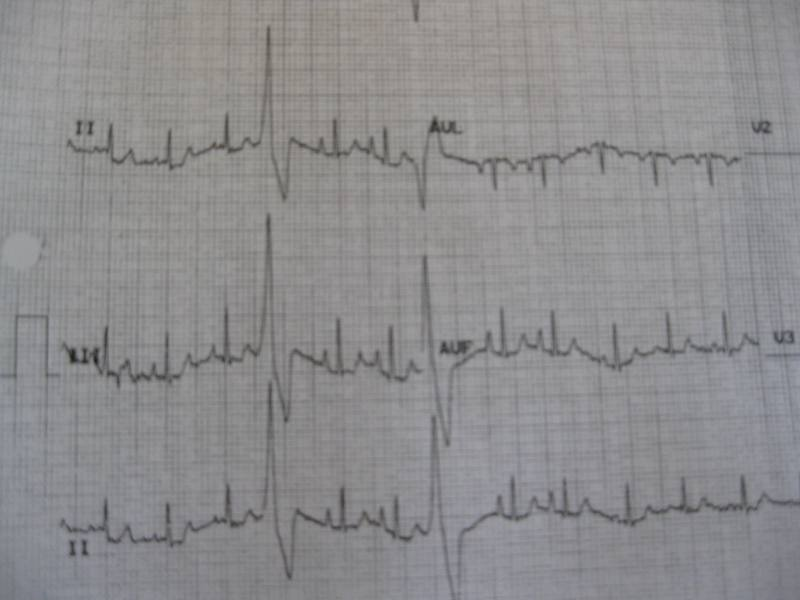 This is Ginko's actual EKG from October. You can see the really BIG beats he gets when his heart gets out of sync.